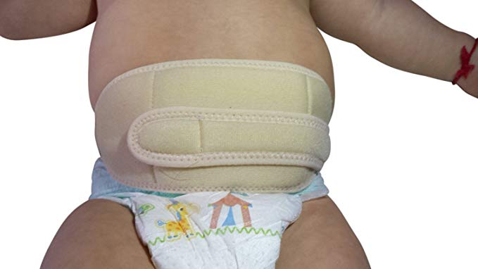 Бандаж для новорожденных от пупочной грыжи своими руками thumbnail